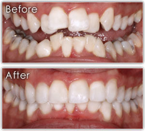 photo of 6 month braces before and after